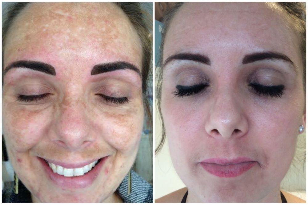 Luciderm offer world leading treatment for Melasma